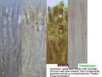 Hymenoscyphus-kathiae-110605-MCol-02