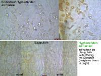Hymenoscyphus-imberbis-110611-MCol-04