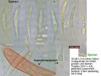 Hymenoscyphus-dearnessii-110722-MCol-01