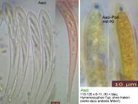 Hymenoscyphus-dearnessii-110722-MCol-02