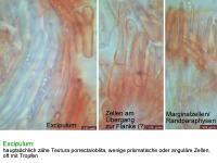 Hymenoscyphus-dearnessii-110722-MCol-05