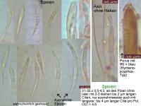 Hymenoscyphus-dearnessii-110728-MCol-01