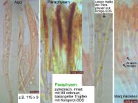 Hymenoscyphus-dearnessii-110728-MCol-02