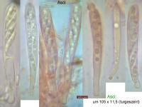 Hymenoscyphus-pseudoalbidus-110718-MCol-02