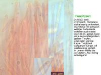 Allophylaria-cf-Phalaris-111127-MCol-03