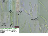 Hymenoscyphus-scutula-111207-MCol-01