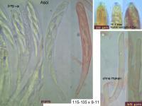 Hymenoscyphus-scutula-111207-MCol-02