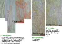 Hymenoscyphus-scutula-111207-MCol-03
