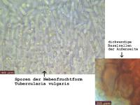 Nectria-cinnabarina-120124-MCol-05