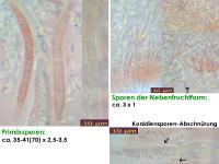 Nectria-cucurbitula-120203-MCol-01