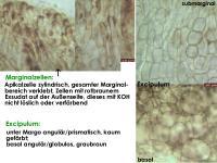 Pyrenopeziza-petiolaris-120517-MCol-03