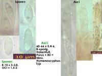 Hymenoscyphus-imberbis-cf-120609-BM-U1-MCol-01