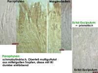 Hymenoscyphus-menthae-120701-MCol-03