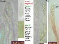 Bisporella-claroflava-121023-MCol-01