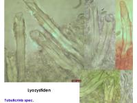 Lyozystiden-121218