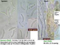 Calycina-vulgaris-130106-ZJ-MCol-01JJ