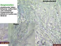 Calycina-vulgaris-130106-ZJ-MCol-04JJ