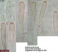 apical-thickenings-aristata-130124