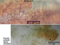 Cryptodiscus-rhopaloides-130228-ZJ-MCol-03JJ