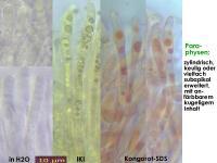 Pyrenopeziza-petiolaris-130520-MCol-02JJ