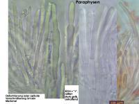 Mollisia-pyrenopezizoides-cf-(ellipsoidsporig)-130423-MCol-03JJ