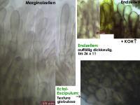 Mollisia-pyrenopezizoides-cf-(ellipsoidsporig)-130423-MCol-04JJ