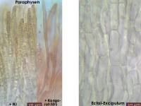 Hymenoscyphus-menthae-130712-MCol-02JJ