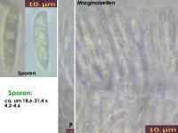 Hymenoscyphus-pseudoalbidus-130814-MCol-01J