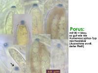 Hymenoscyphus-salicellus-130917-MCol-02J