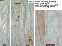 Hymenoscyphus-salicellus-130917-MCol-03J