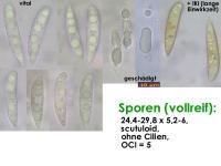 Hymenoscyphus-suspectus-131113-MCol-01JJ