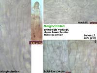 Hymenoscyphus-suspectus-131113-MCol-04JJ