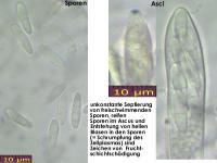 Schaedigung-Alter-Asco-Mikroskopisch-131209-MCol-01JJ