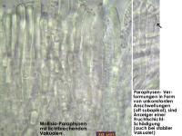 Schaedigung-Alter-Asco-Mikroskopisch-131209-MCol-02JJ