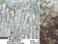Schaedigung-Alter-Asco-Mikroskopisch-131209-MCol-03JJ