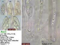 Bisporella-confluens-131215-WS-MCol-02JJ
