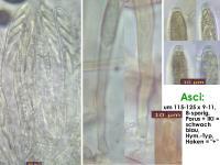 Hymenoscyphus-conscriptus-131209-WS-MCol-02JJ