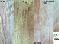 Hymenoscyphus-conscriptus-131209-WS-MCol-03JJ