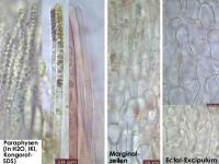 Hymenoscyphus-suspectus-131214-MCol-03JJ