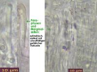 Calycina-lactea-131227-ThH-MCol-03JJ