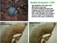 Mollisia-spec-140215-Annam-Exc+KOH-MCol-01JJ