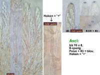 Arachnopeziza-trabinelloides-140215-Annam-MCol-02JJ
