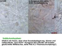 Arachnopeziza-trabinelloides-140215-Annam-MCol-08JJ