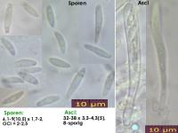Microencoelia-mollisioides-131229-TR-MCol-01J