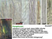 Microencoelia-mollisioides-131229-TR-MCol-03J