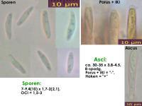 Microencoelia-mollisioides-140711-MCol-01JJ