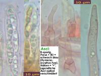 Hymenoscyphus-monticola-141013-MM-MCol-02JJ