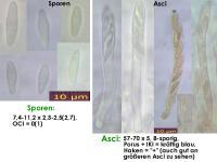 Pyrenopeziza-petiolaris-130531-MM-MCol-01JJ