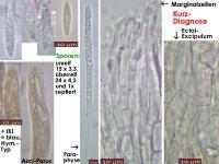 Hymenoscyphus-menthae-140722-MCol-01JJ