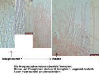 Calycina-discreta-(Haken-minus)-141120-MCol-04JJ